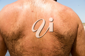 Red skin tan on the back of a man .